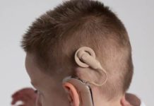 Dedicated 'Cochlear Implant Program' launched at Ivy Hospital