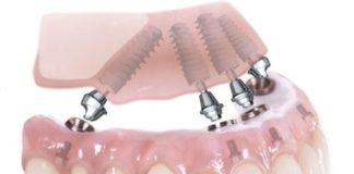 ALL-ON- 4 dental implants are one of the highly recommended alternatives to dentures