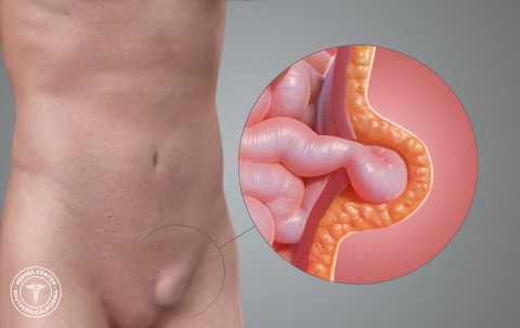 Patient Information on Inguinal Hernia | Apollo Clinic Chandigarh
