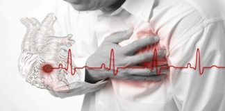 Angina Chest Pain & Tightness, Symptoms, Types & Treatment