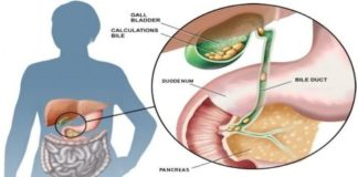 GALL BLADDER STONES - ETIOLOGY, SYMPTOMS AND TREATMENT