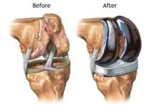 Total Knee Replacement: Surgery Pain, Recovery & Risks